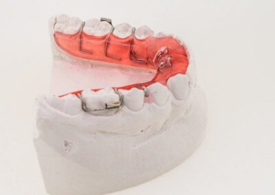 Plaque inf à verin + tubes molaires