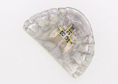 eclateur + suro molaire + fouet sur moulage 3D 2