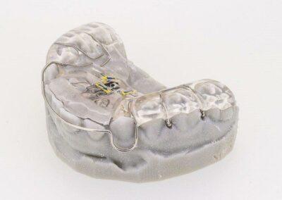 eclateur + suro molaire + fouet sur moulage 3D